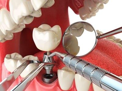 Стоматология ортопедическая