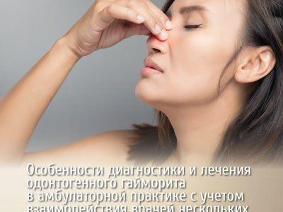 Про одонтогенный гайморит — причины, лечение