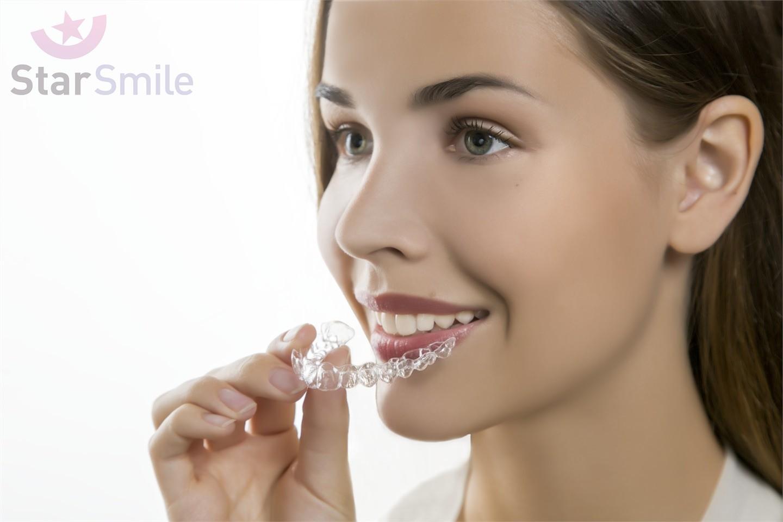 Элайнеры Star Smile - всё современное для ВАС!